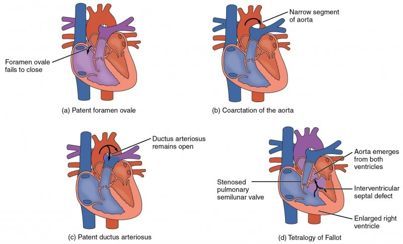 Array of heart illustrations with different defects.