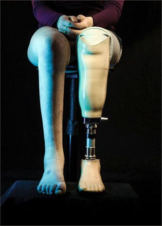 A woman with a prosthetic leg.