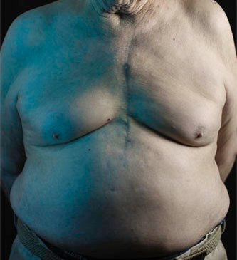 Man with a chest scar from bypass surgery.
