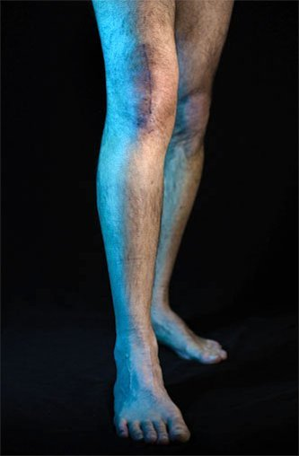 A person with scarring on their knee from a artificial replacement surgery.