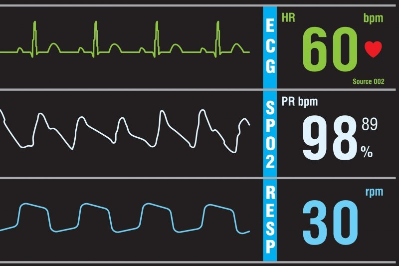 Heart monitor screen.