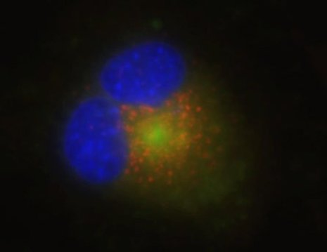 New fluorescent dyes help illuminate lysosome structures.