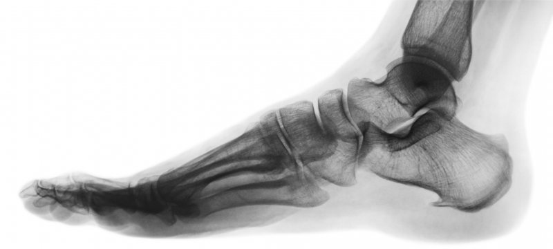 X-ray of a human foot