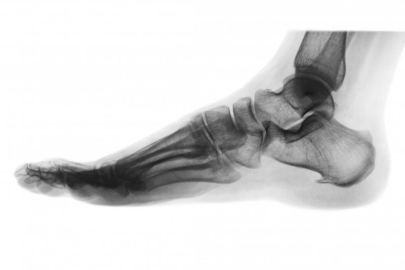 Xray of a human foot